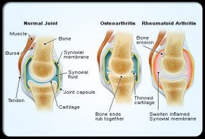 joint with osteoarthritis